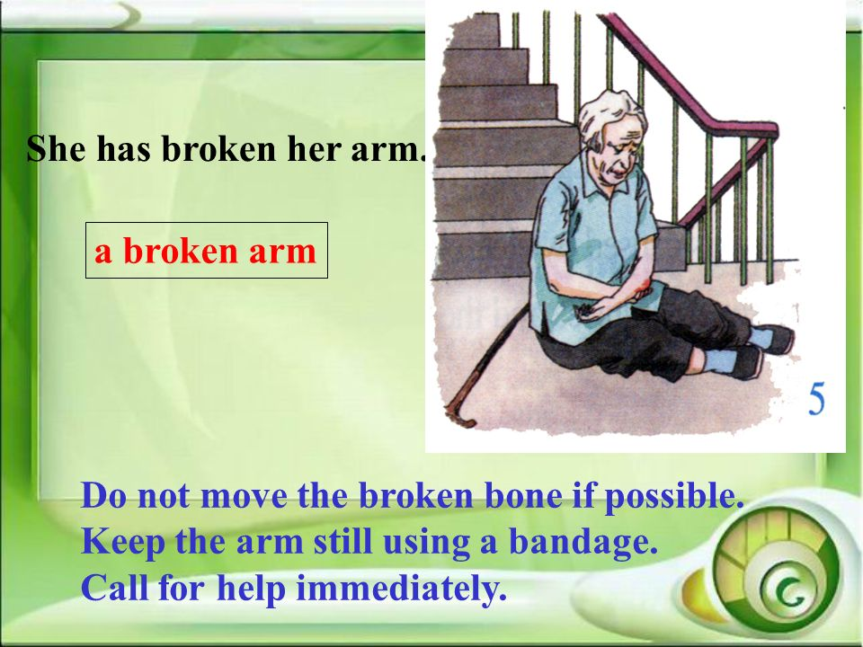 She has broken her arm. a broken arm. Do not move the broken bone if possible. Keep the arm still using a bandage.