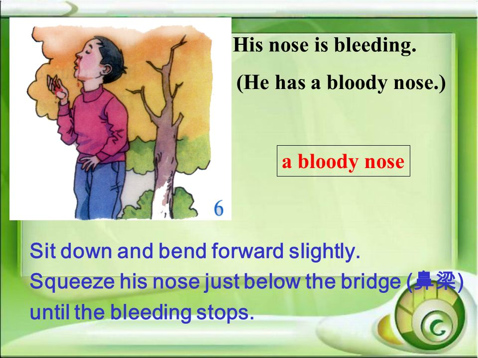 His nose is bleeding. (He has a bloody nose.) a bloody nose. Sit down and bend forward slightly. Squeeze his nose just below the bridge (鼻梁)