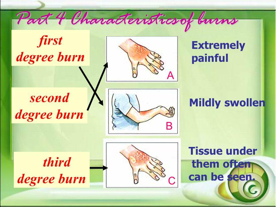 Part 4 Characteristics of burns