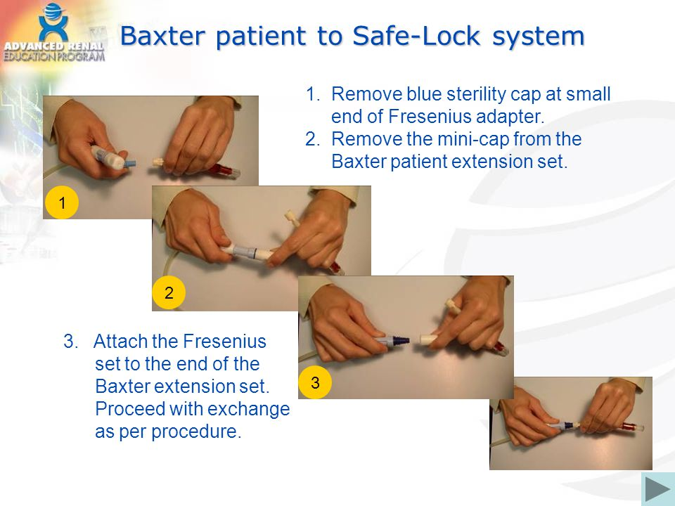 Baxter patient to Safe-Lock system