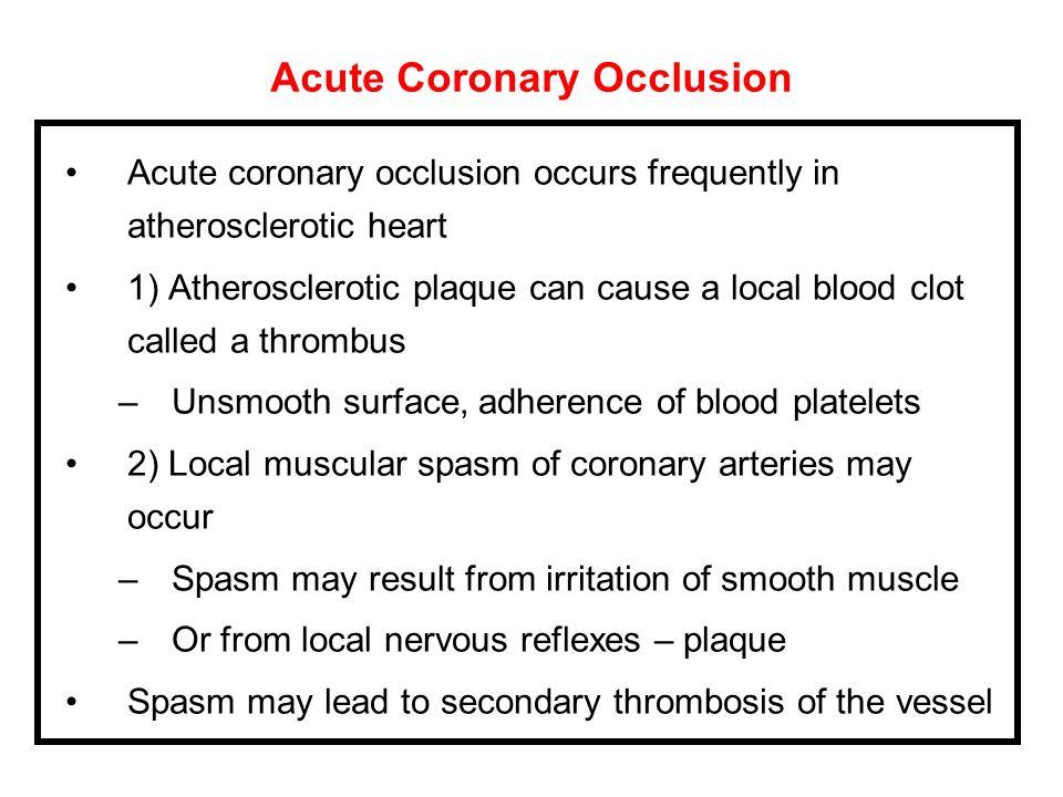 Acute Coronary Occlusion