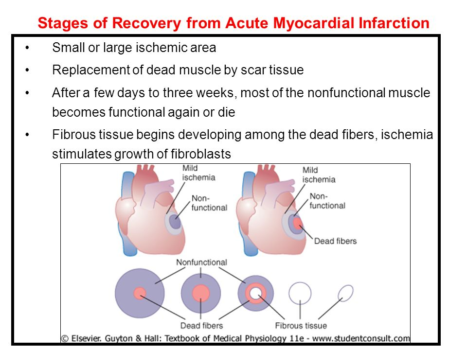 Stages of Recovery from Acute Myocardial Infarction