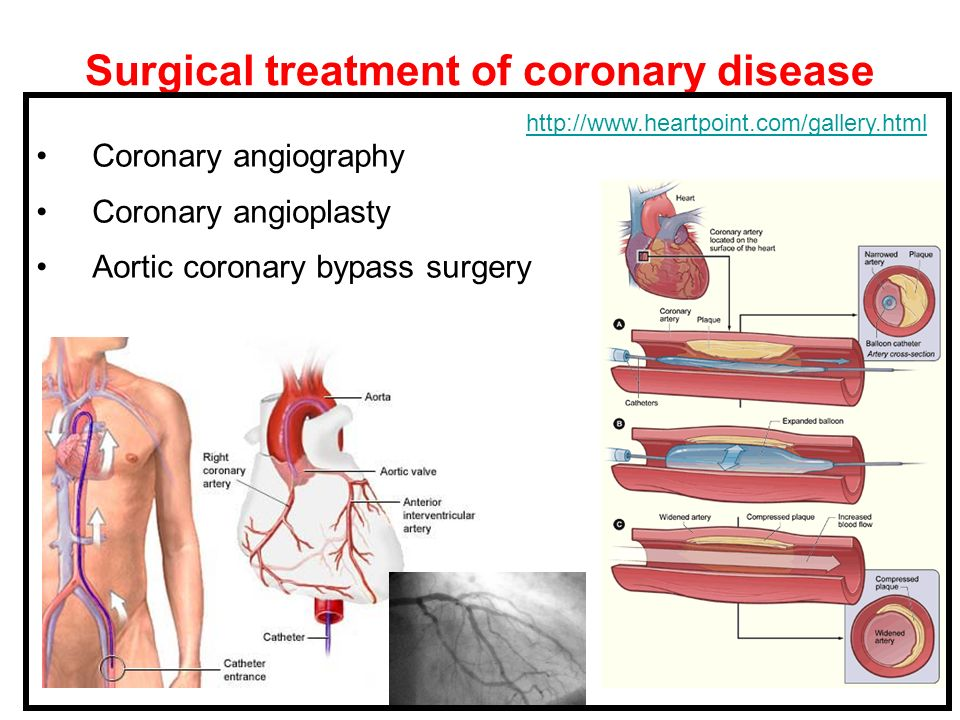 Surgical treatment of coronary disease
