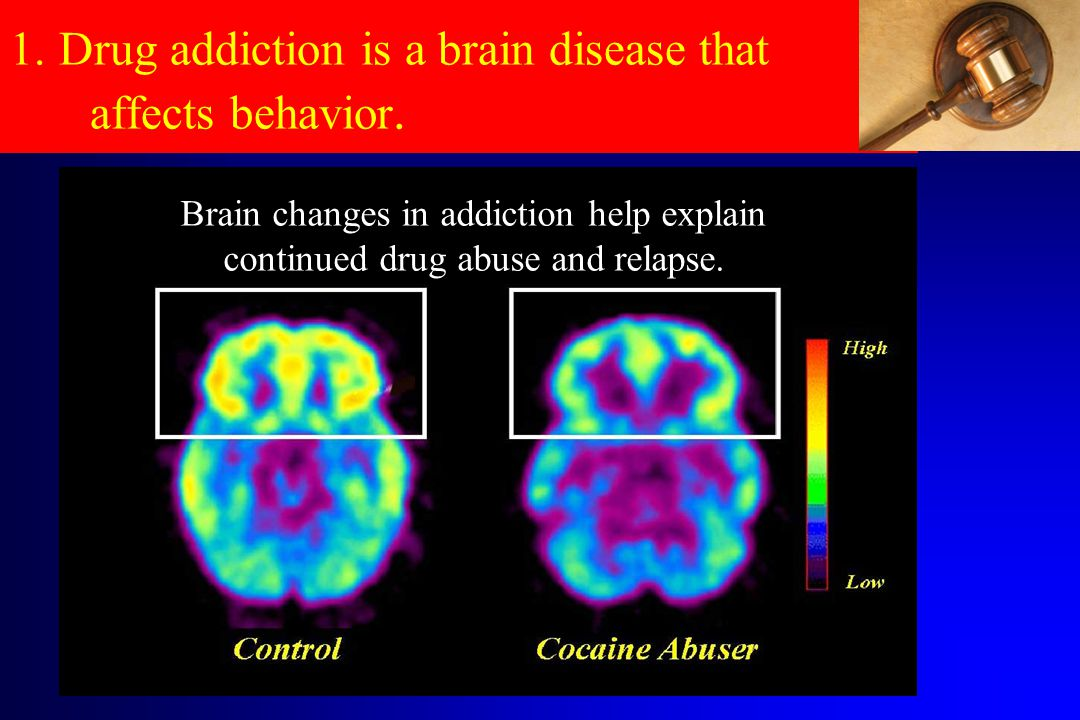 1. Drug addiction is a brain disease that affects behavior.