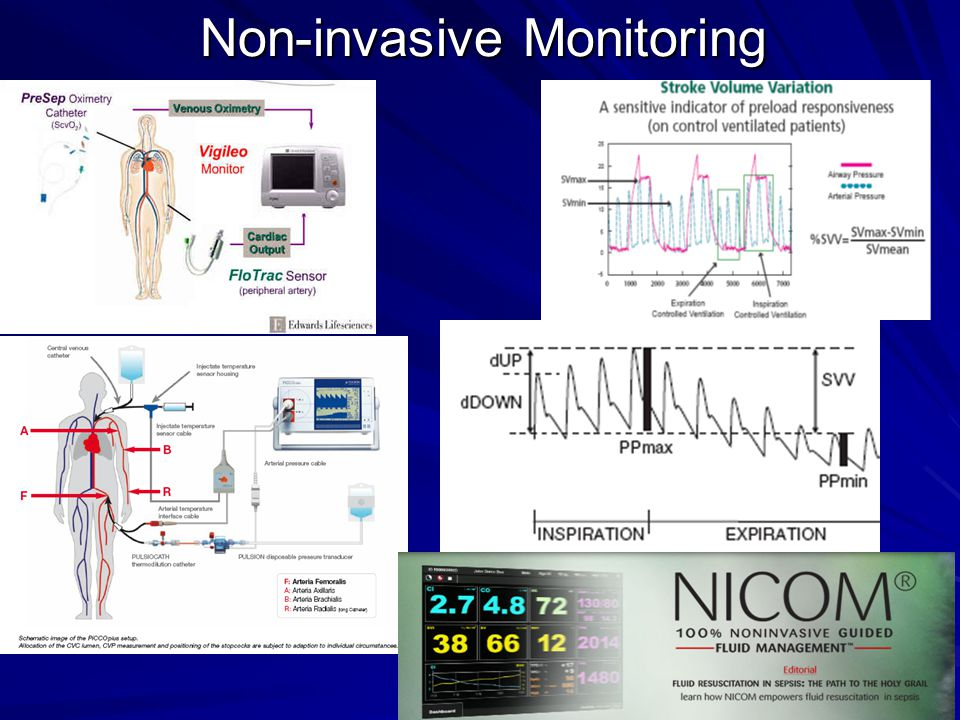 Non-invasive Monitoring