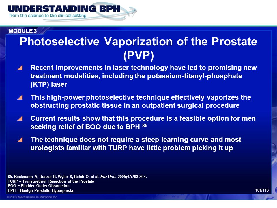 Photoselective Vaporization of the Prostate (PVP)