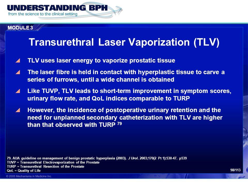 Transurethral Laser Vaporization (TLV)