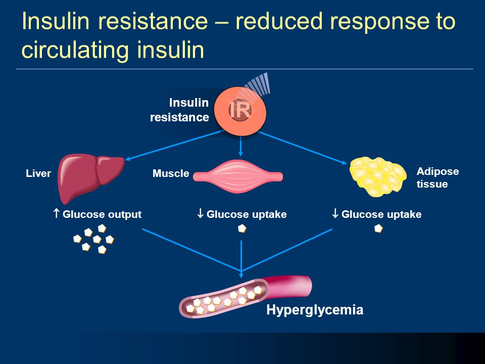 Insulin resistance – reduced response to circulating insulin