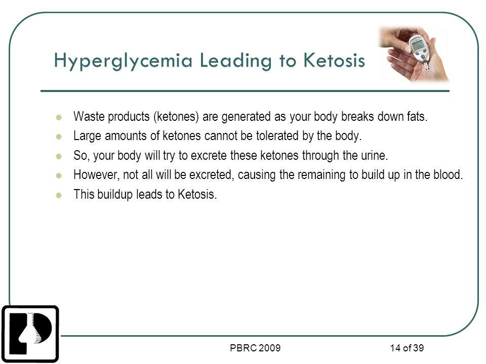 Hyperglycemia Leading to Ketosis