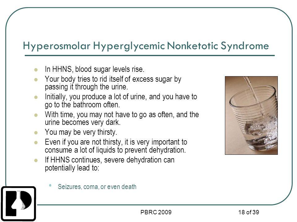 Hyperosmolar Hyperglycemic Nonketotic Syndrome