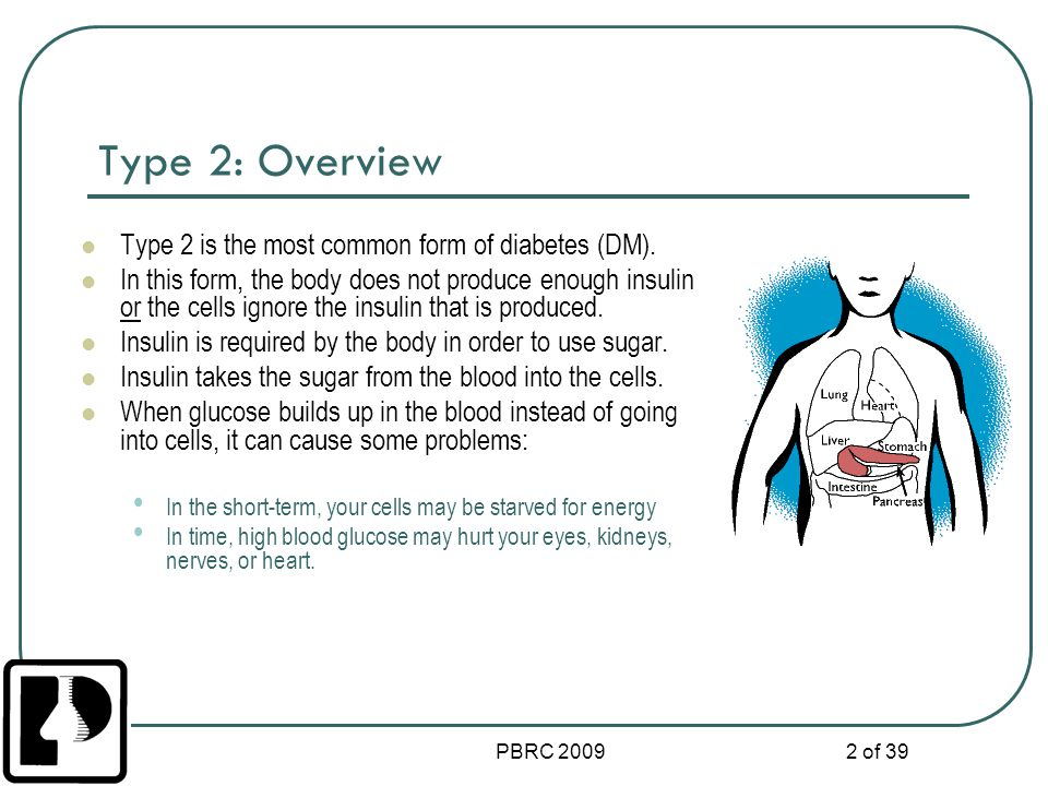 Type 2: Overview Type 2 is the most common form of diabetes (DM).