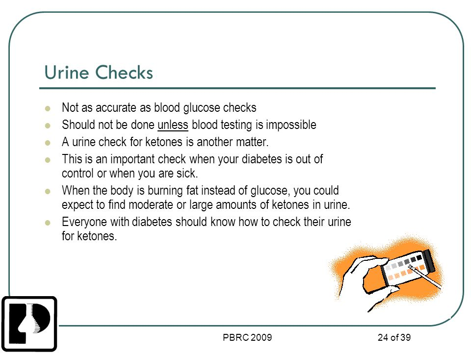 Urine Checks Not as accurate as blood glucose checks