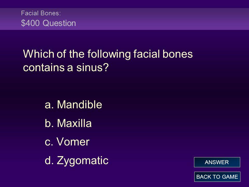 Facial Bones: $400 Question