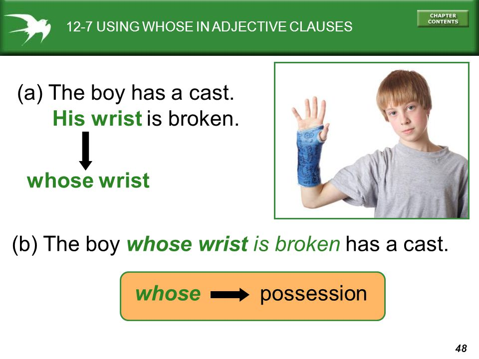 (b) The boy whose wrist is broken has a cast.