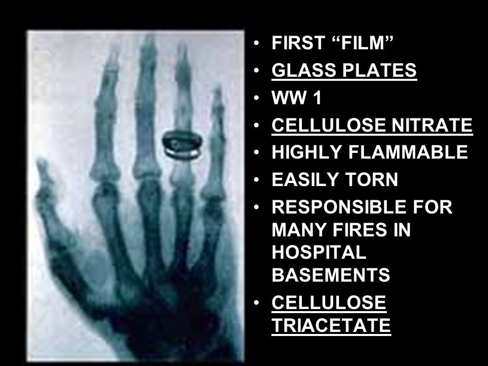 FIRST FILM GLASS PLATES. WW 1. CELLULOSE NITRATE. HIGHLY FLAMMABLE. EASILY TORN. RESPONSIBLE FOR MANY FIRES IN HOSPITAL BASEMENTS.