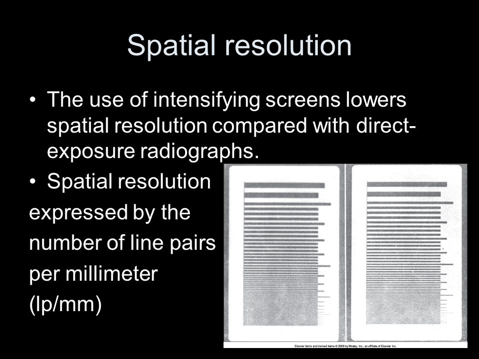 Spatial resolution The use of intensifying screens lowers spatial resolution compared with direct-exposure radiographs.