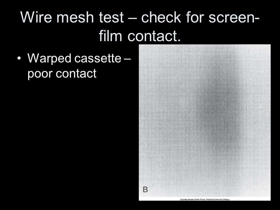 Wire mesh test – check for screen-film contact.