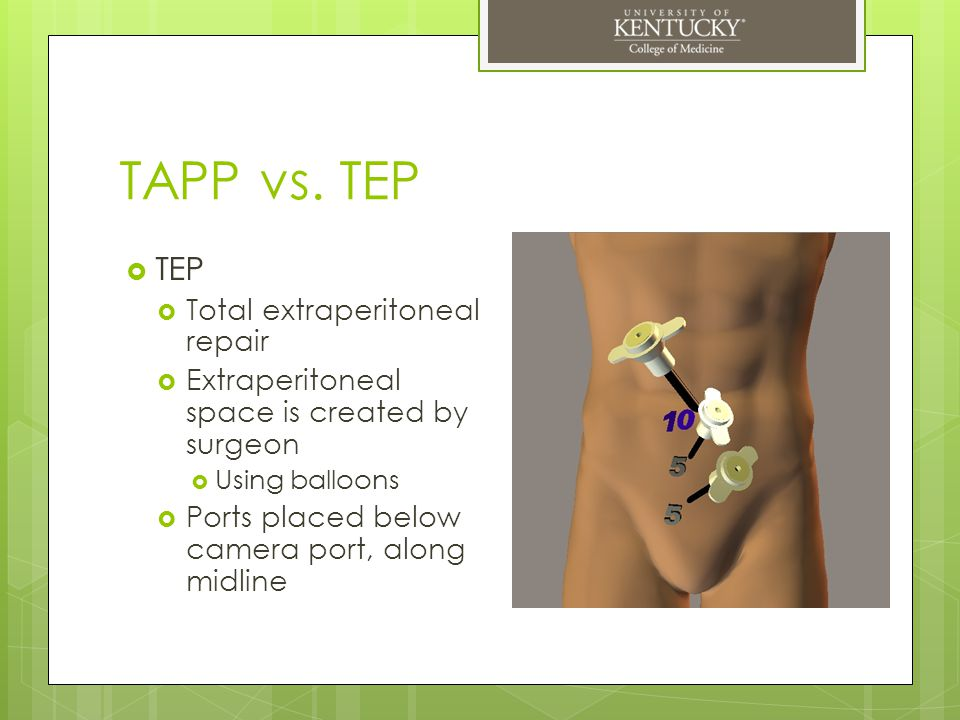 TAPP vs. TEP TEP Total extraperitoneal repair