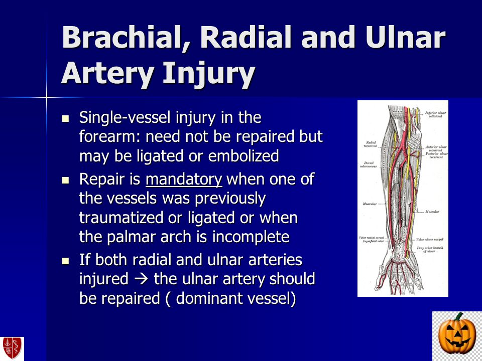 Brachial, Radial and Ulnar Artery Injury