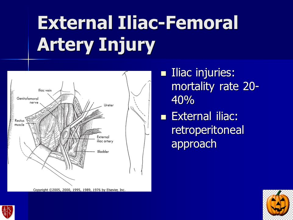 External Iliac-Femoral Artery Injury