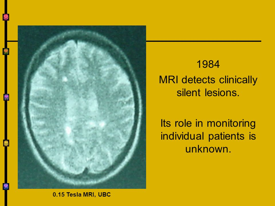 MRI detects clinically silent lesions.