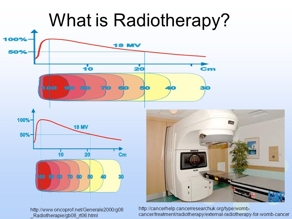 What is Radiotherapy
