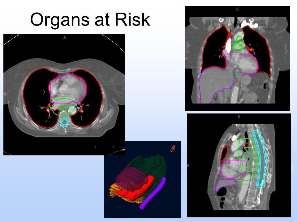 Organs at Risk