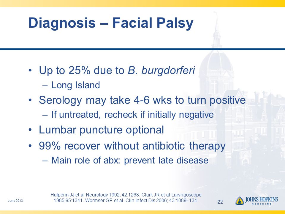 Diagnosis – Facial Palsy