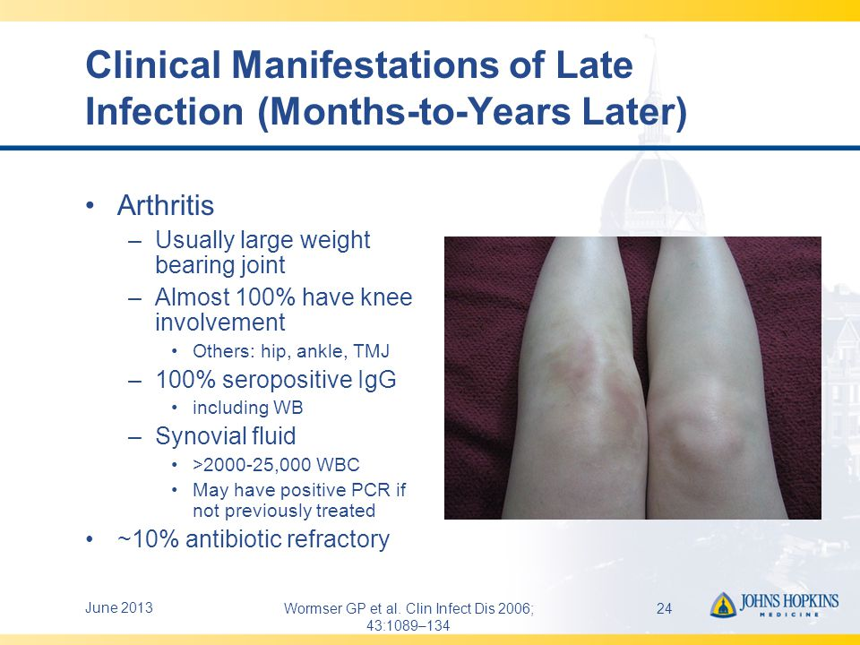 Clinical Manifestations of Late Infection (Months-to-Years Later)
