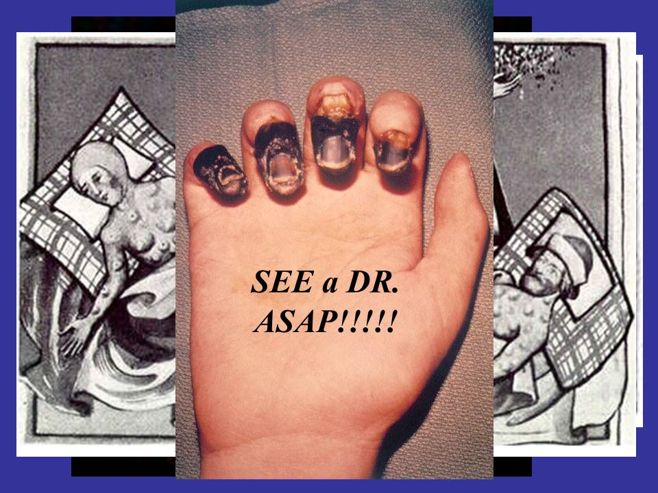 SEE a DR. ASAP!!!!!