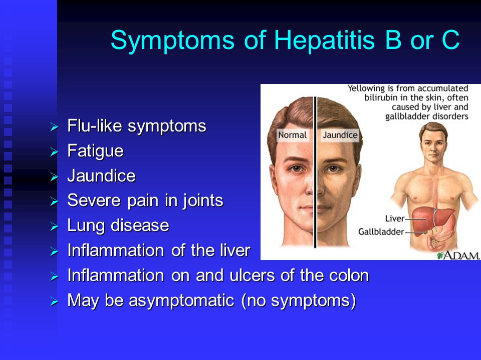 Symptoms of Hepatitis B or C