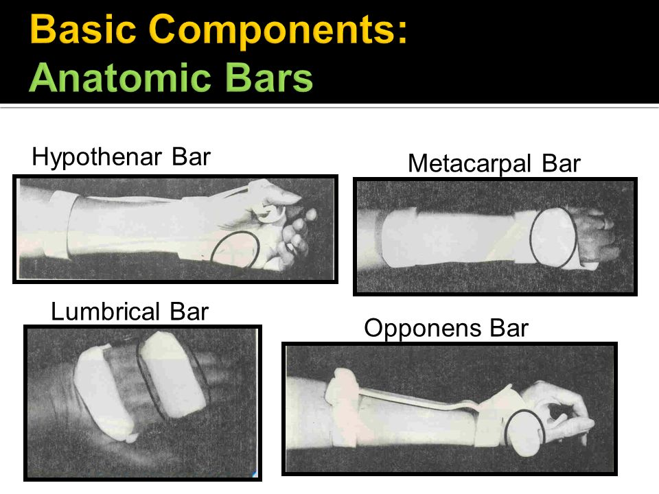 Basic Components: Anatomic Bars