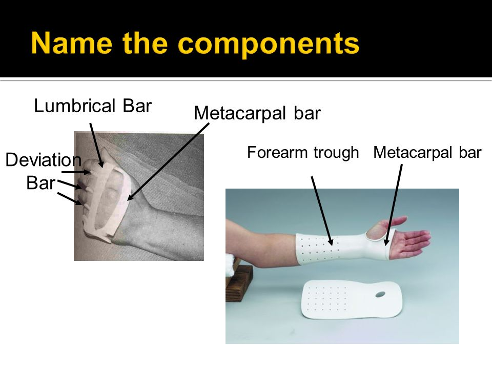 Name the components Lumbrical Bar Metacarpal bar Deviation Bar