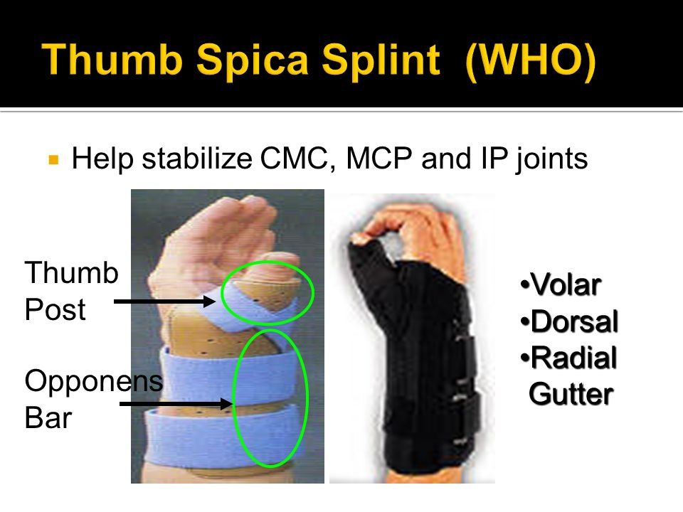 Upper Extremity Orthosis Static And Dynamic Ppt Video