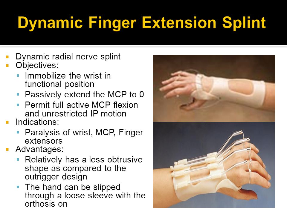 Dynamic Finger Extension Splint
