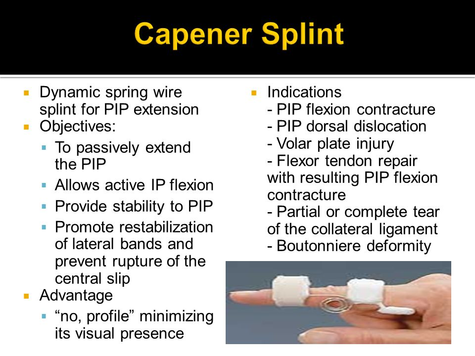 Capener Splint Dynamic spring wire splint for PIP extension