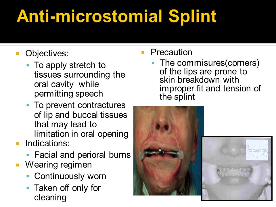 Anti-microstomial Splint