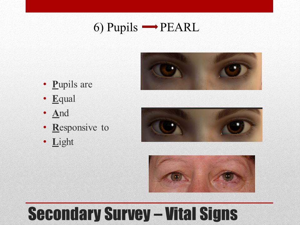 Secondary Survey – Vital Signs