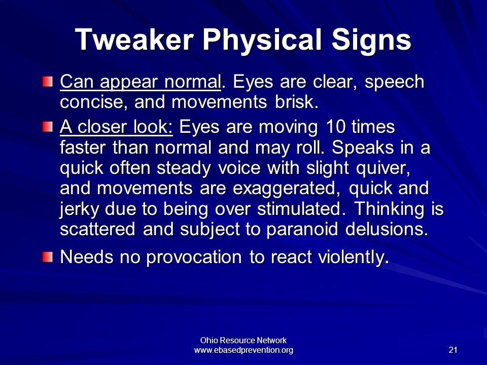 Tweaker Physical Signs