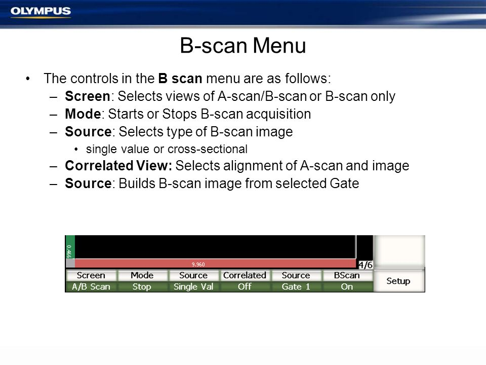 B-scan Menu The controls in the B scan menu are as follows: