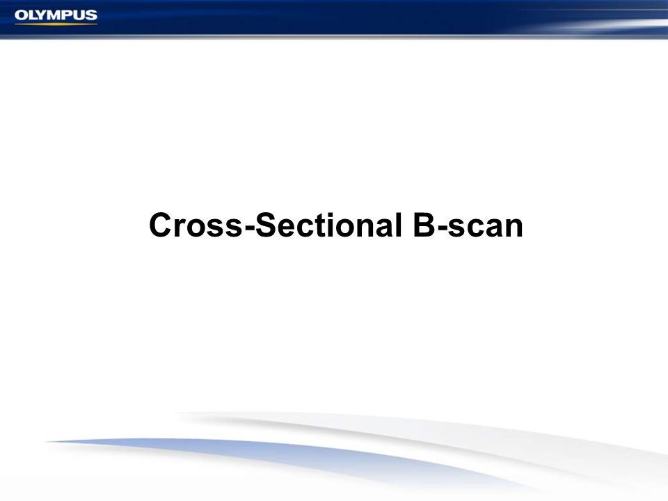 Cross-Sectional B-scan