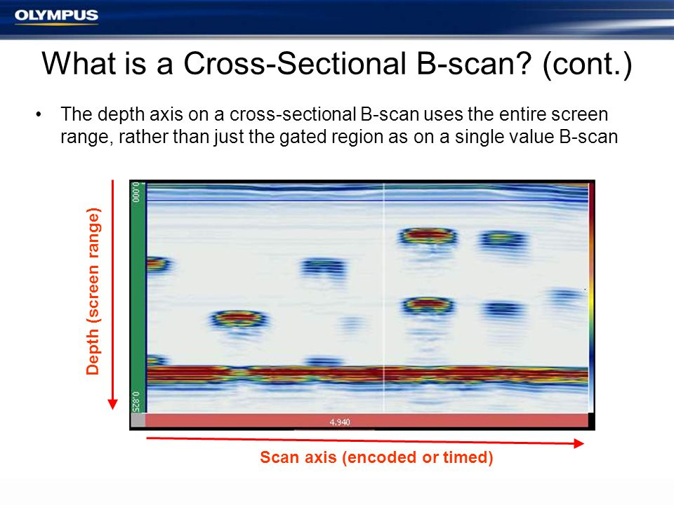 What is a Cross-Sectional B-scan (cont.)