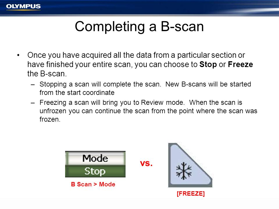 Completing a B-scan