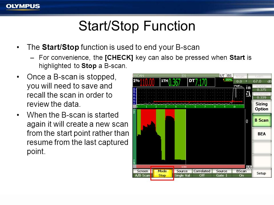Start/Stop Function The Start/Stop function is used to end your B-scan