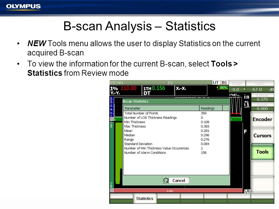 B-scan Analysis – Statistics