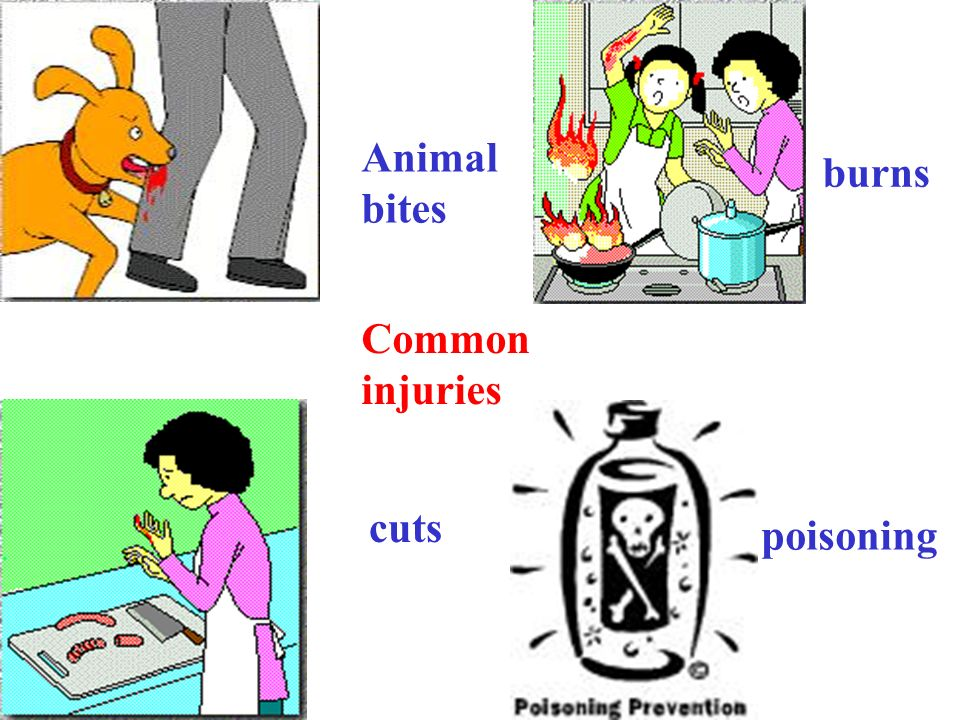 Animal bites burns Common injuries cuts poisoning