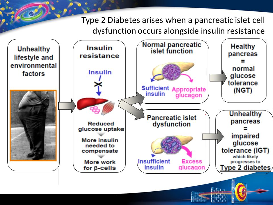 Type 2 Diabetes arises when a pancreatic islet cell dysfunction occurs alongside insulin resistance