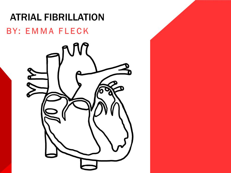 Atrial fibrillation By: Emma Fleck