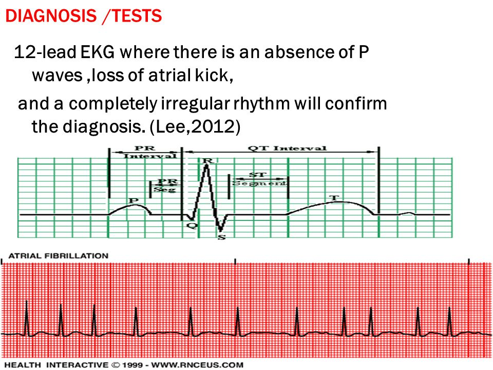 Diagnosis /Tests