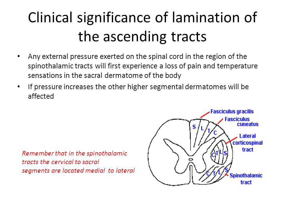 Clinical significance of lamination of the ascending tracts